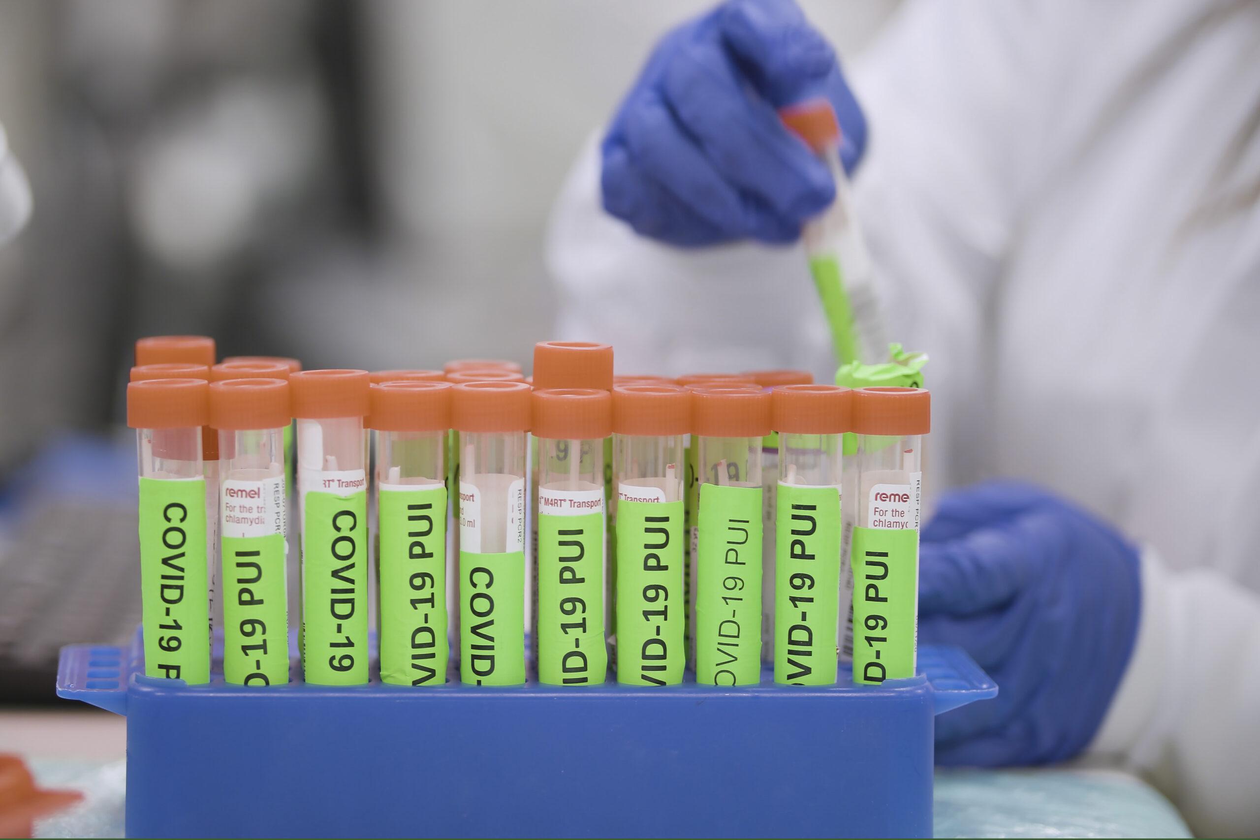Covid Testing Stanford Lab